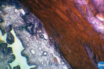 Пиометра у собаки: Гистология
