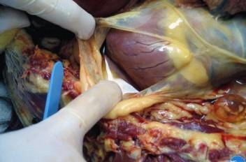 Эпикард при пироплазмозе