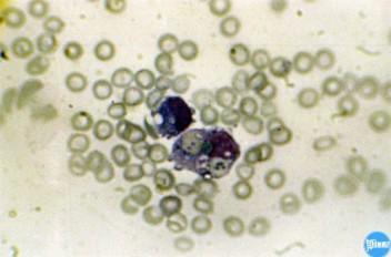 Адгезия клеток при пироплазмозе