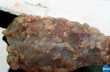 Цирроз печени у кошки: Макрофото