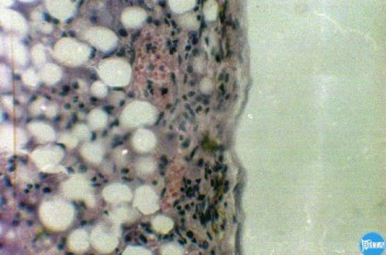 Цирроз печени у кошки: Гистология