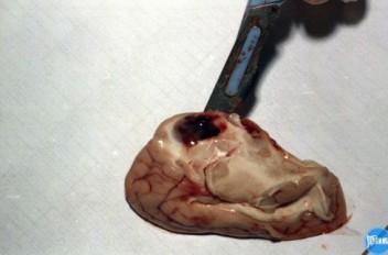 Участок размягчения в головном мозге
