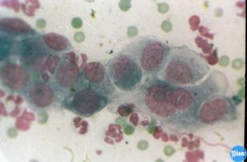 Аденокарцинома слюнной железы