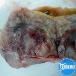 Аденокарцинома кишечника с формированием кишечной непроходимости